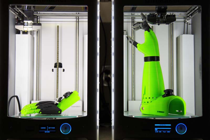 3D printing of prosthetic arms